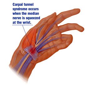 Carpal Tunnel Syndrome – Symptoms, Causes, Diagnosis and Treatments