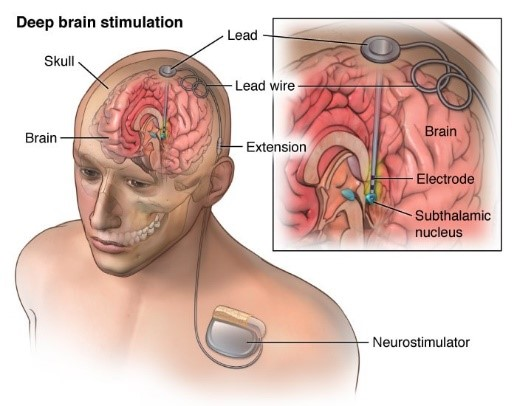Deep Brain Stimulation – Advantages, Risks and Conditions Treated