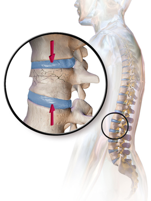 Vertebral Compression Fractures – Symptoms, Complications, Diagnosis